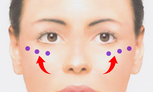 ヒアルロン酸による頬のリフトアップでほうれい線改善