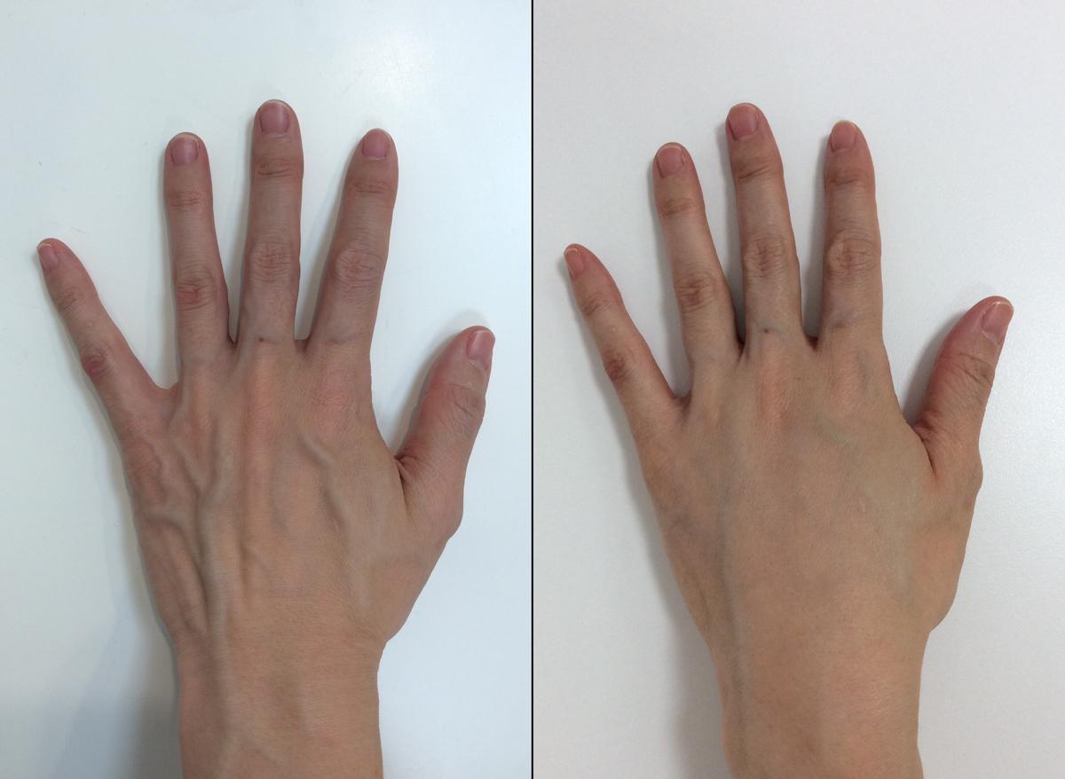 手のヒアルロン酸注入