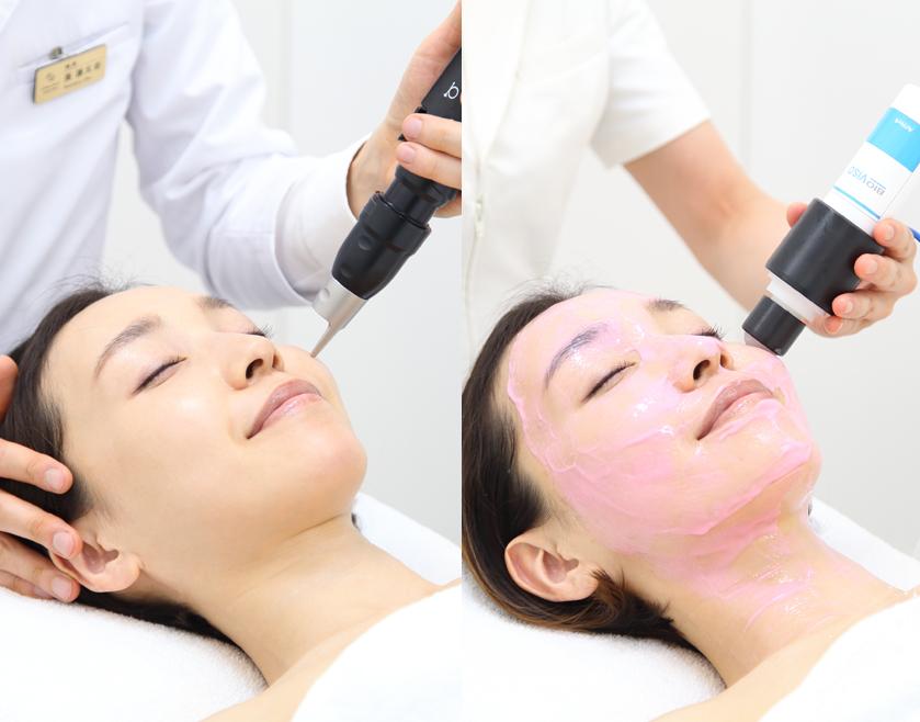 肌再生プログラム
