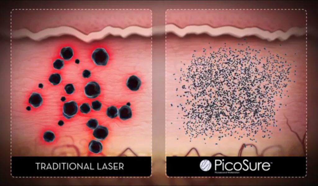 従来のレーザーとピコ秒レーザーの違い